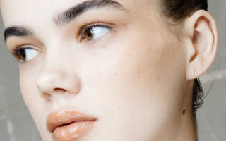 Проблемная кожа лица лечение прыщей и угрей видео