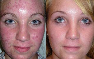Как сделать кожу без прыщей и угрей